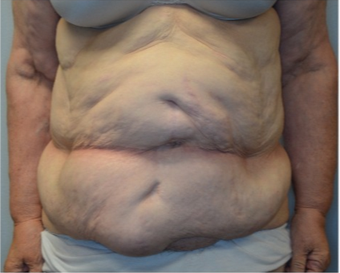 68 year old woman treated with panniculectomy along with abdominal wall reconstruction before 2562574