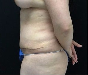 35-44 year old woman treated with Tummy Tuck after 3219162
