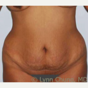 35-44 year old woman treated with Tummy Tuck before 1989181