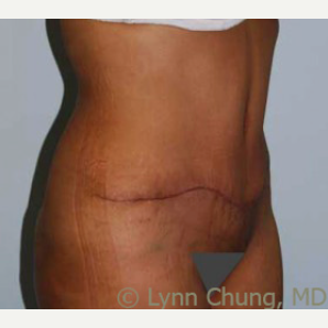 35-44 year old woman treated with Tummy Tuck 1989181
