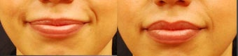 Restylane Lip Augmentation before 981069