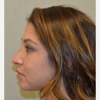 18-24 year old woman treated with Rhinoplasty after 3408533