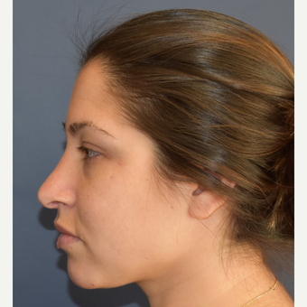 18-24 year old woman treated with Rhinoplasty before 3408533