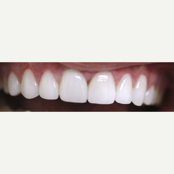 18-24 year old woman treated with Porcelain Veneers after 3308302