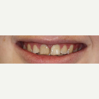 18-24 year old woman treated with Porcelain Veneers before 3308302