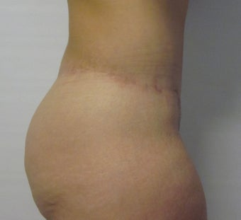 Abdominoplasty/ Beltectomy/ Liposuction  after 611294
