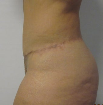 Abdominoplasty/ Beltectomy/ Liposuction  611294