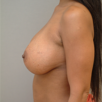 35-44 year old woman treated with Breast Implants after 3741994