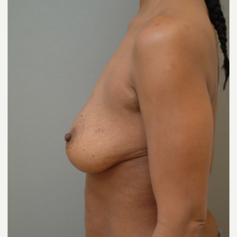 35-44 year old woman treated with Breast Implants before 3741994
