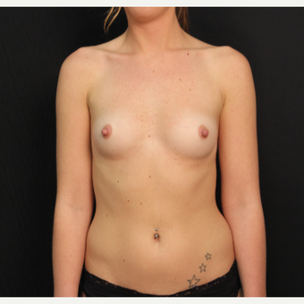 25 year old female with bilateral submuscular silicone implants placed through the underarm before 3522676