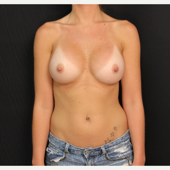 25 year old female with bilateral submuscular silicone implants placed through the underarm after 3522676