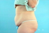 Tummy Tuck before 3446275