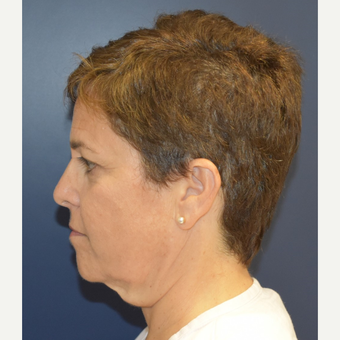 55-64 year old woman treated with Lower Face Lift before 3460959