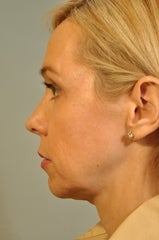 Chin Augmentation added to a surgery 658571