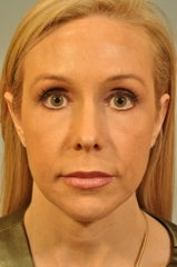 Chin Augmentation added to a surgery after 658571