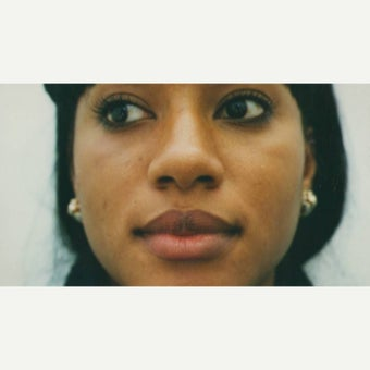 25-34 year old woman treated with African American Rhinoplasty before 2220219