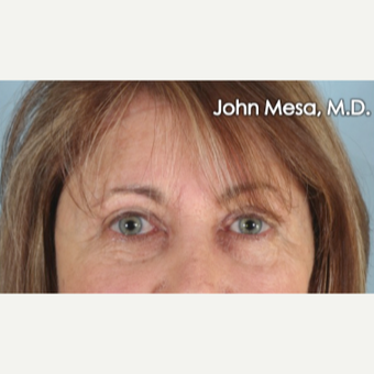 45-54 year old woman treated with Eye Bags Treatment after 3659908