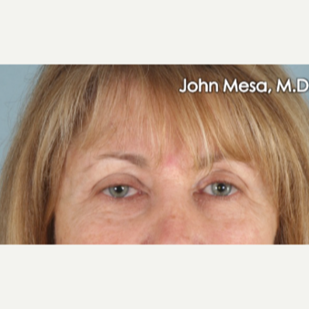 45-54 year old woman treated with Eye Bags Treatment before 3659908