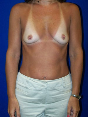 Breast Augmentation  before 92692
