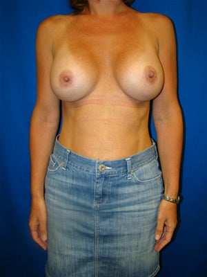 Breast Augmentation  after 92692