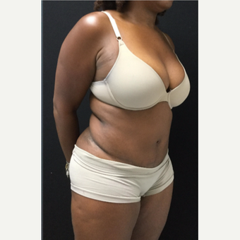 45-54 year old woman treated with Tummy Tuck after 3481540