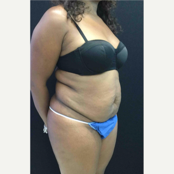 45-54 year old woman treated with Tummy Tuck before 3481540
