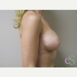 Breast Implants after 3373691