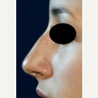 18-24 year old woman treated with Rhinoplasty before 1978620