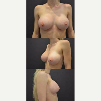 18-24 year old woman treated with Breast Augmentation after 3482609