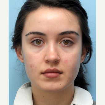 Eye Bags Treatment Using Restylane before 1747198