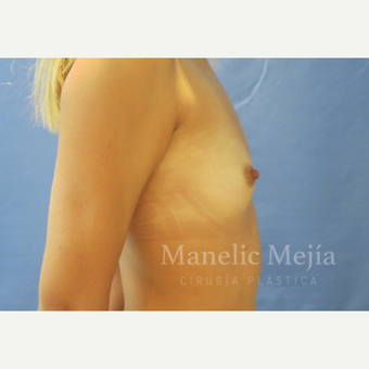 25-34 year old woman treated with Breast Augmentation before 3647231