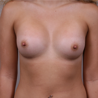 18-24 year old woman treated with Breast Augmentation after 3141942