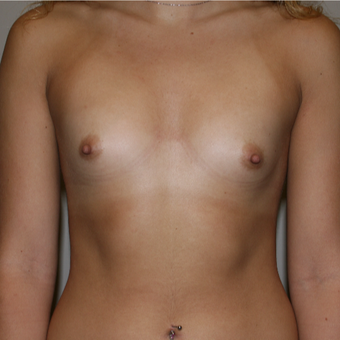 18-24 year old woman treated with Breast Augmentation before 3141942