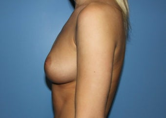 Projection Is Priority for Early 20s Breast Implant Patient 1359854