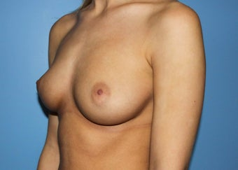 Projection Is Priority for Early 20s Breast Implant Patient before 1359854