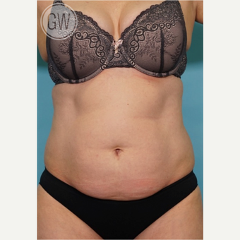 35-44 year old woman treated with Tummy Tuck + Circumferential Liposuction before 3016620