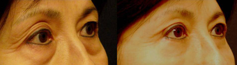 Lower Eyelid Surgery before 389794
