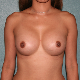 25-34 year old woman treated with Breast Augmentation after 3489089