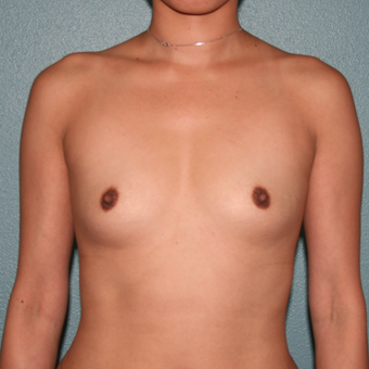 25-34 year old woman treated with Breast Augmentation before 3489089