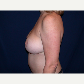 35-44 year old woman treated with Breast Lift with Implants after 3589837