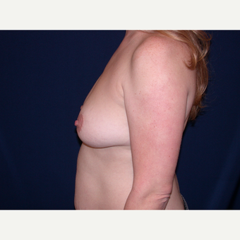 35-44 year old woman treated with Breast Lift with Implants before 3589837
