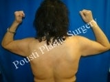 2 Stage Breast Procedure, Arm Lift, Breast Lift before 1455869