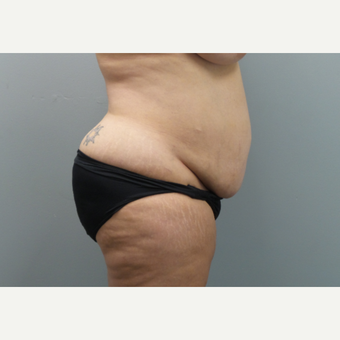 45-54 year old woman treated with Tummy Tuck before 3325694