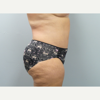 45-54 year old woman treated with Tummy Tuck after 3325694