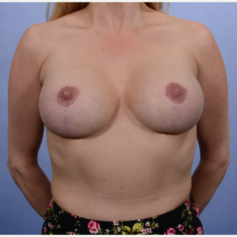 Breast Lift with Implants after 3052201