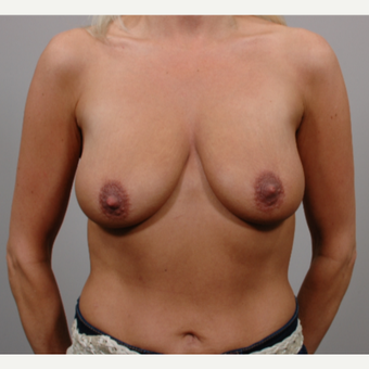 Breast Lift with Implants before 3052201