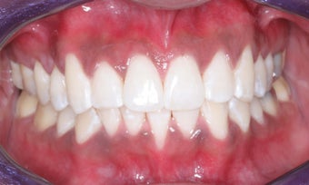 Whitening and Invisalign after 372837