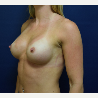 18-24 year old woman treated with Breast Augmentation after 3162364