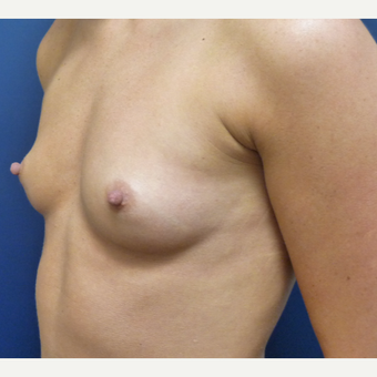 18-24 year old woman treated with Breast Augmentation before 3162364