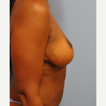 44 year old woman with 500 g breast reduction.  36 H cup to C cup. after 3304122